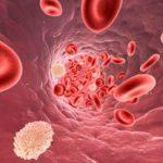 Гомеопатия для снижения холестерина